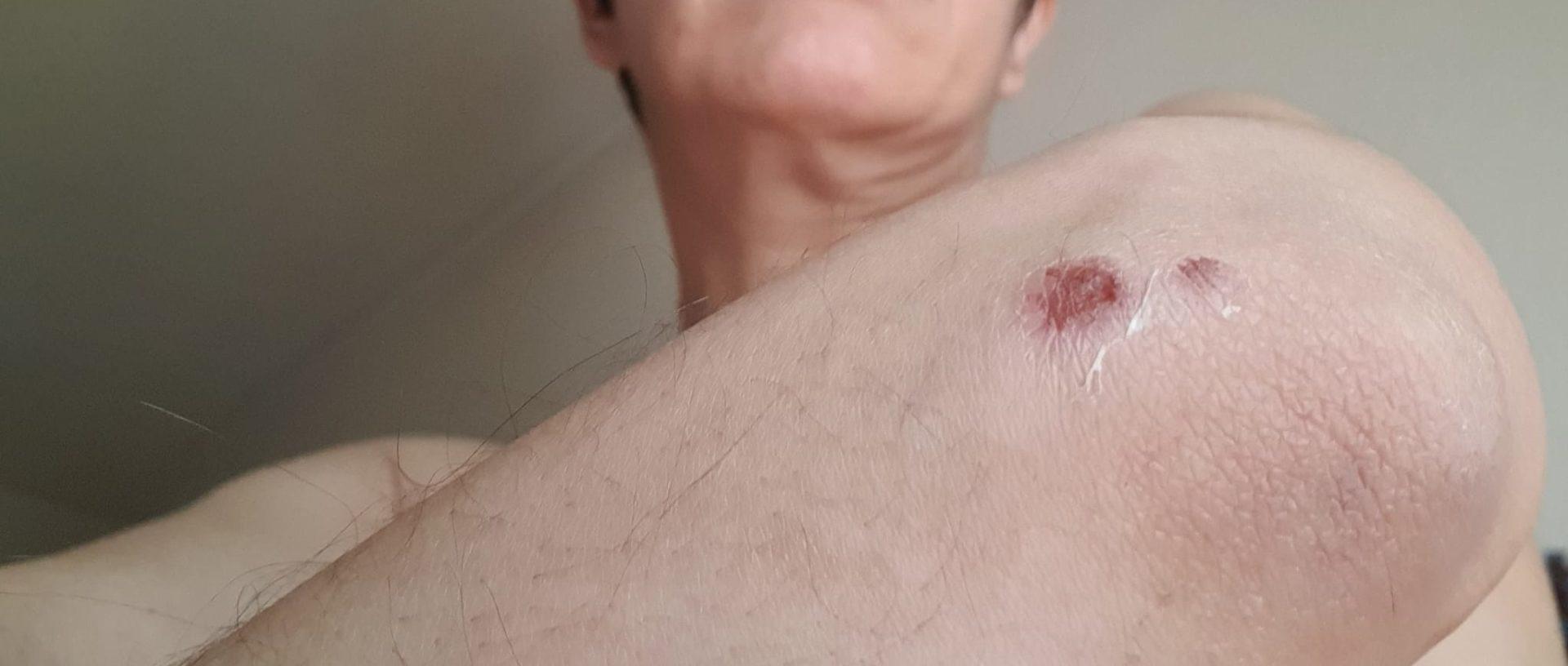 Mujer agredida en Alicante